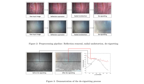 Sparse-then-Dense Alignment based 3D Map Reconstruction Method for Endoscopic Capsule Robots